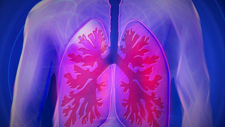 příznaky rakoviny plic